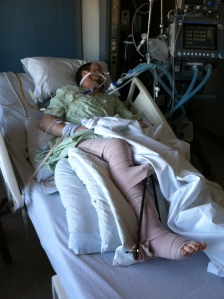 Jeremy in ICU, February 17, 2012.